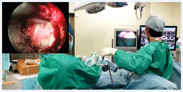 Nivaran Spine and Pain Clinic